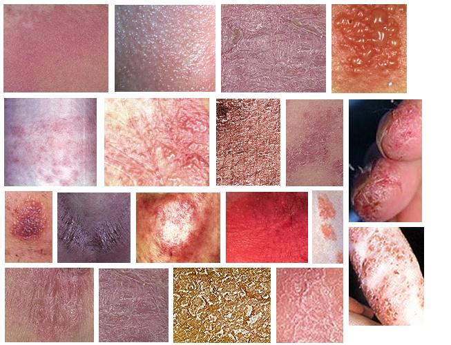 접촉 알레르기로 인한 여러가지 증상.jpg