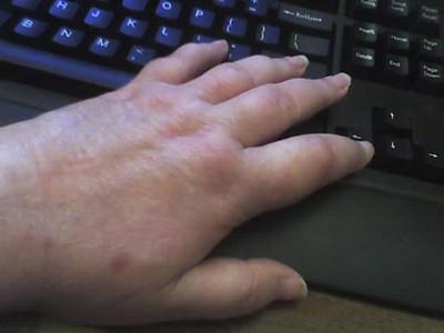 swollen fingers.jpg