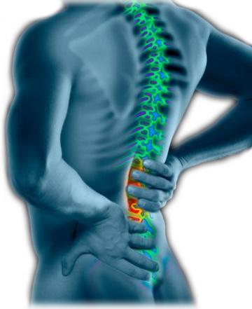 Spondylitis.jpg