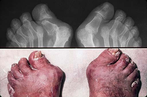 Symmetric arthritis.jpg