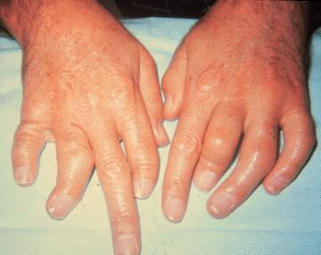 Arthritis_mutilans_in_psori.jpg