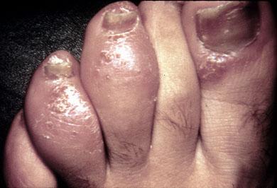 Asymmetric arthritis.jpg