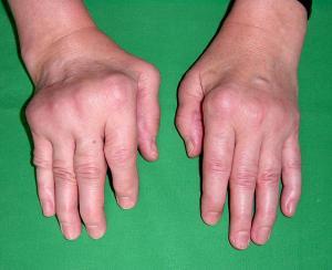 rheumatoid_arthritis.jpg