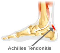 tendonitis_achilles.jpg