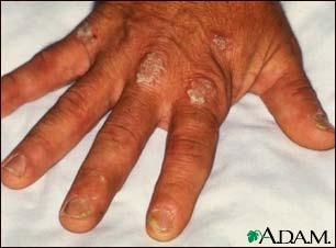 psoriatic_arthritis.jpg