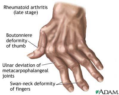 rheumatoid_arthritis2.jpg