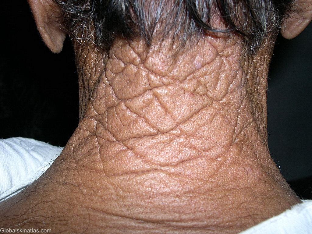 목덜미마름모 피부1.jpg