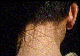 목덜미 마름모 피부3.jpg