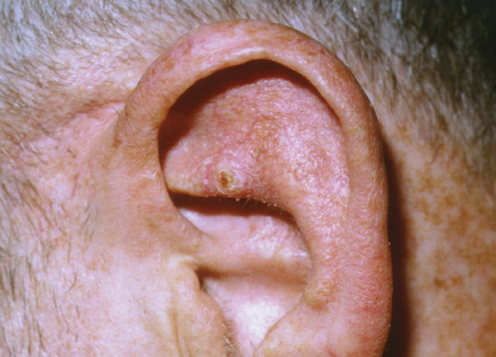 결절성 이륜 연골 피부염2.jpg