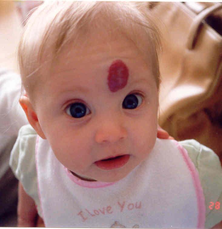 유아혈관종.jpg