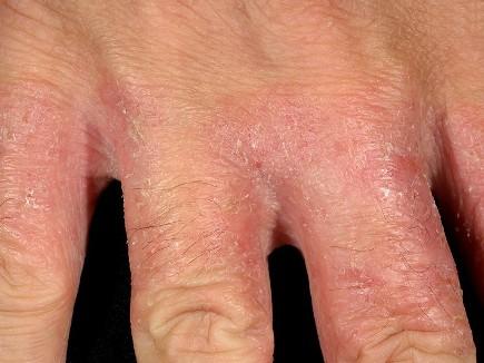 자극성 접촉피부염5.jpg