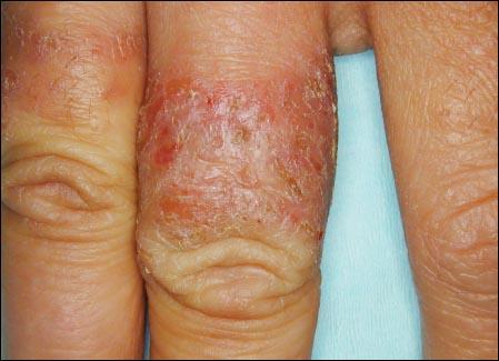 자극성 접촉 피부염2 - 반지.jpg