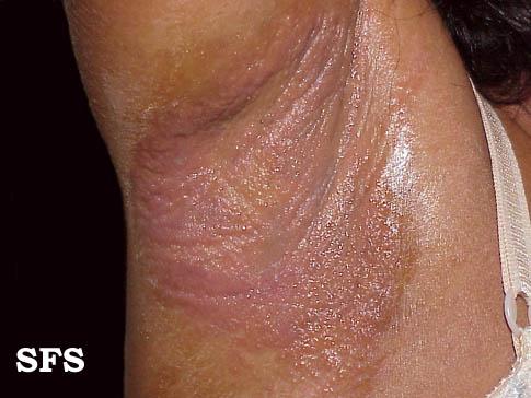자극성 접촉 피부염- 겨드랑이.jpg