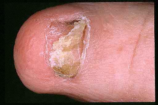 조갑진균증2-2.jpg