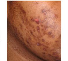 염증후 과색소 침착3.jpg
