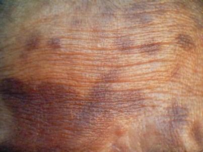 염증후 과색소 침착1.jpg