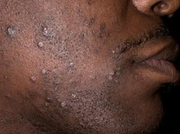 수염 가성 모낭염3.jpg