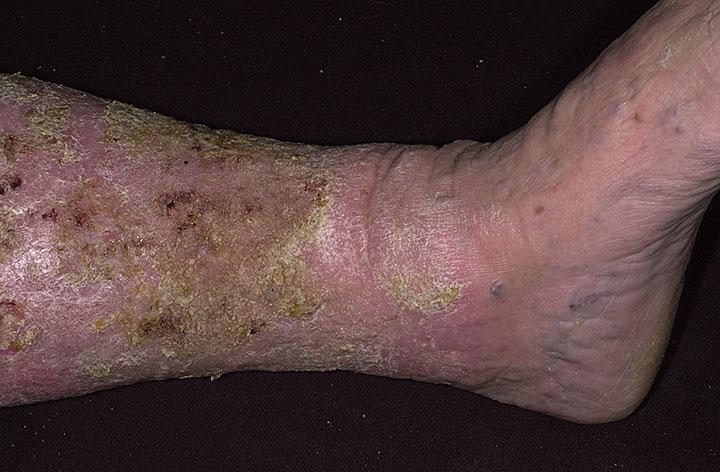 심한 울체성피부염.jpg