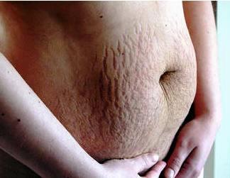 임신중 튼살2.jpg