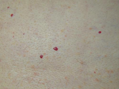 버찌 혈관종3.png