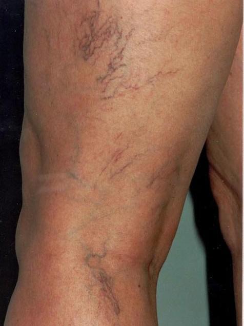 모세혈관확장증6.jpg
