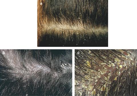 비듬과 지루성피부염.jpg